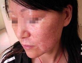 武汉女性白癜风的症状是什么?
