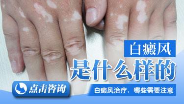 武汉白癜风早期症状有哪些?