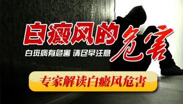 武汉局部白癜风会带来哪些危害?