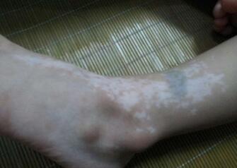 武汉脚部白癜风是由什么因素引起的?
