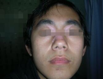 武汉男性为什么会患上白癜风呢?