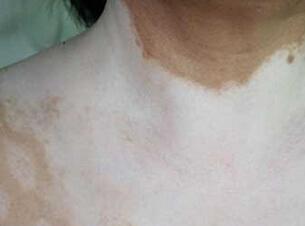 武汉白癜风如何区别去其他皮肤病?