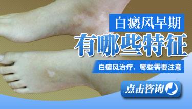 武汉白癜风初期症状好治疗吗?