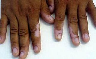 武汉白癜风患者皮肤受伤该怎么处理?