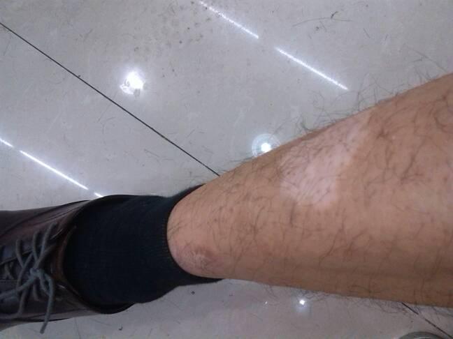 武汉腿上长了白斑患者要怎么进行治疗呢?