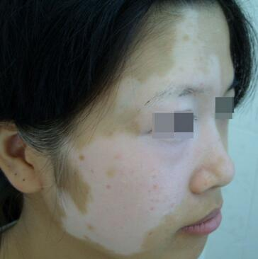 武汉白癜风患者如何协助治疗疾病?